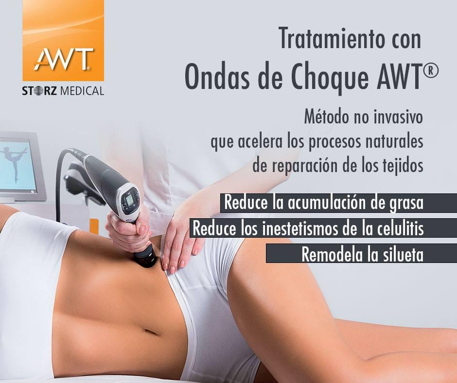 ONDAS DE CHOQUE AWT